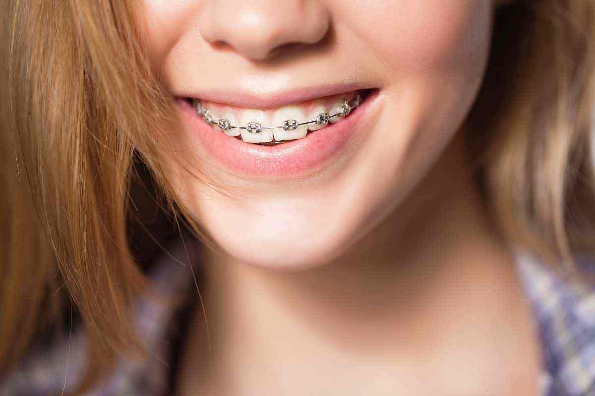 What are the Right Braces for Me?