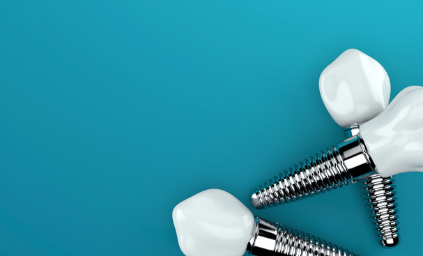 Dental Implants: The Future